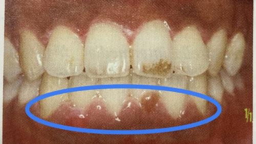 歯周病の3つの原因とその予防法